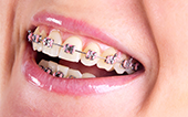 Image traditional braces prices laser