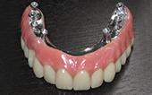 Image Fixed prosthesis