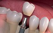 Image Implants Crown