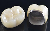 Image Crown porcelan fused metal
