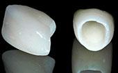 Image metalfree prices dentallasert