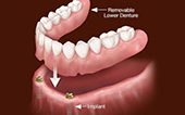 Image Overdenture supported by implants
