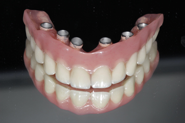 Image Hybrids screwed retained Dentures