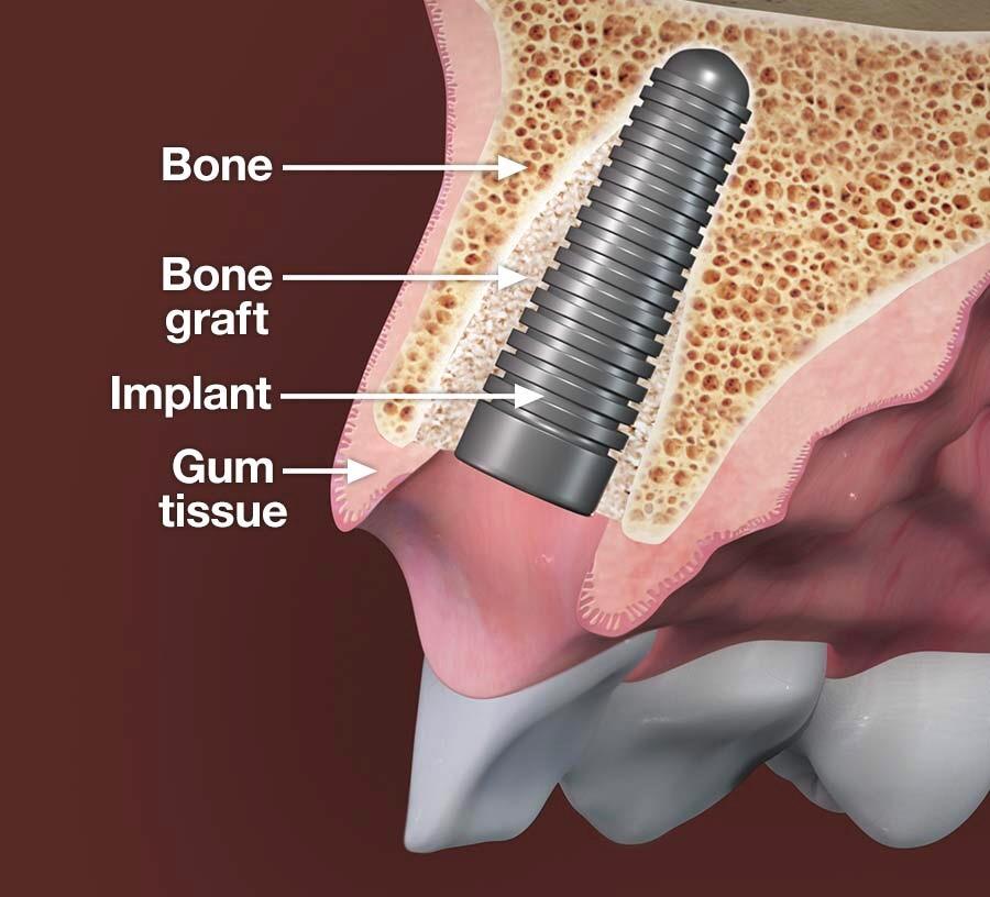 Image bone 1