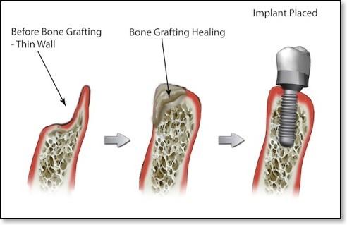 Image bone 2
