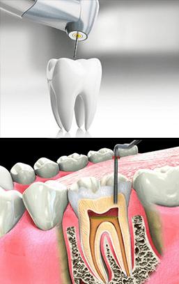Image endodontics services