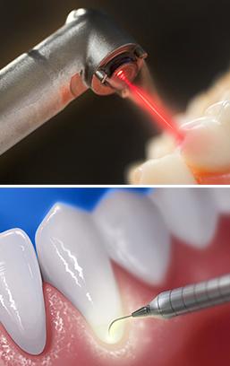 Image laserdentristy dentallaser