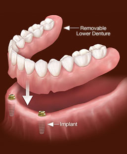 Image overdenture services