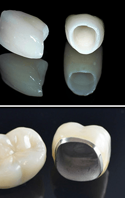 Image porcelain crowns services